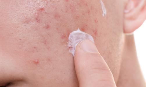 5 Anti fungal acne cream